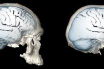 Mind bender: shape of human brain evolved over time